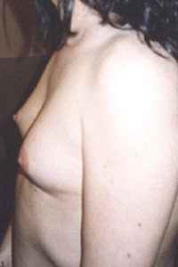 Breast Development Stage Transsexual 25