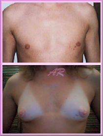 from Thiago transgendered nipple growth pictures
